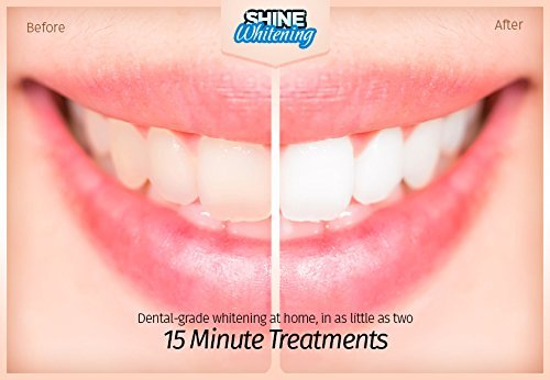 Top 10 Best Teeth Whitener Products to Brighten Your Smile