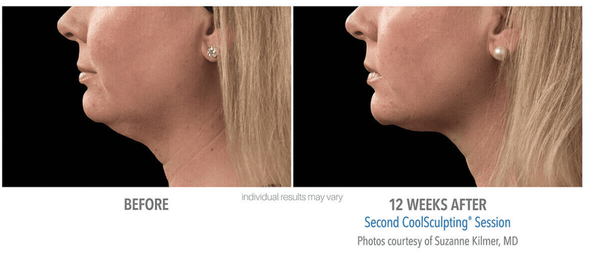 CoolSculpting Face Before and After